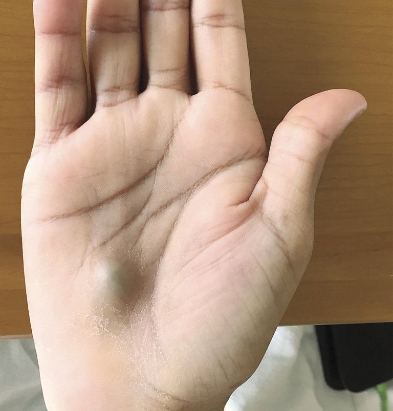 Visit to dentist leaves man with bizarre lump on his hand, deadly heart infection