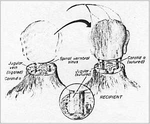 Human Head Transplant Surgery Is Now Possible, Says Neuroscientist #Science