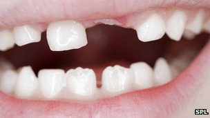 #Science: New teeth grown from urine