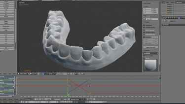 College student 3D prints his own braces